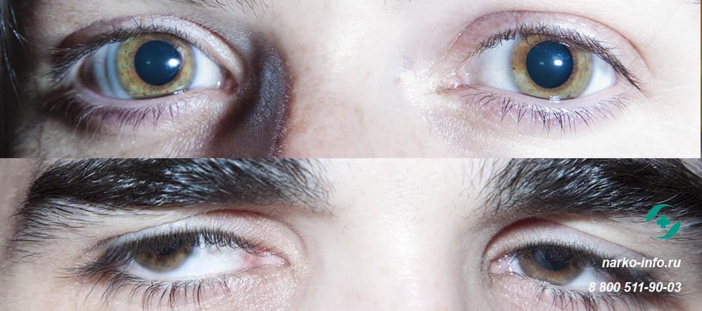 Глаза от марихуаны